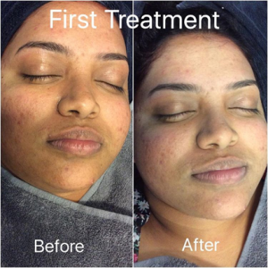 Acne - First treatment