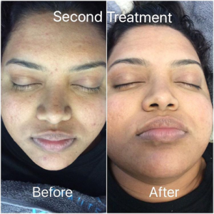 Acne - Second treatment